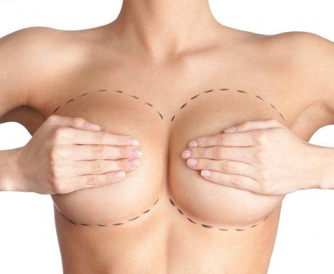 Пластика груди алиева